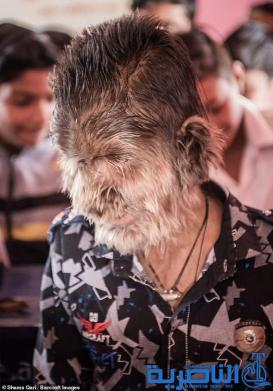 بالصور ظهور أول مستذئب حقيقي في العالم
